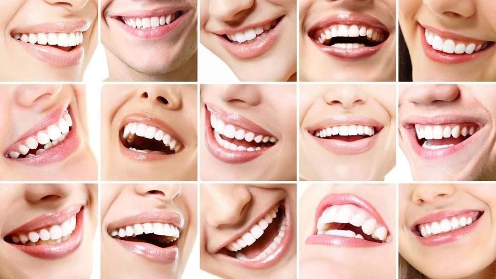 牙齿美白培训哪家好十大专业的美牙培训学校