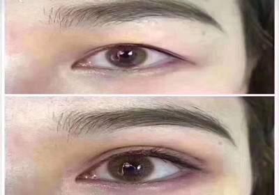 双眼皮综合进修班