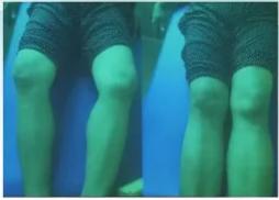 """【洛阳】第十六期全国膝关节畸形一针复位术暨全国第七期""""松骨术""""疗法临床实践高级班"""